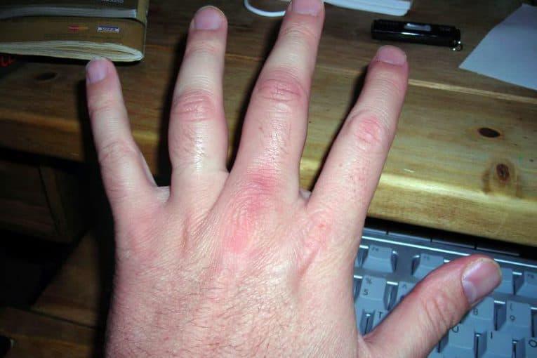 Dedos inflamados por golpe