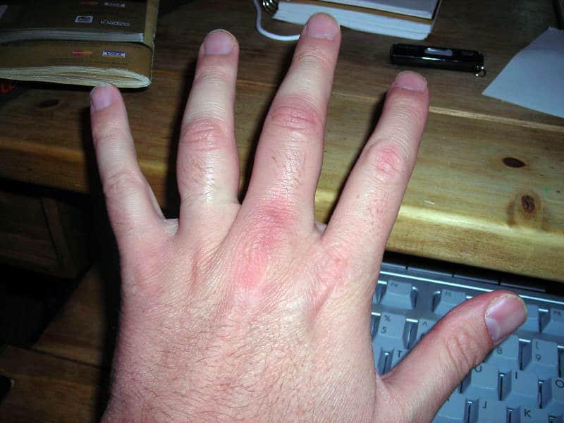 Remedios caseros para la inflamacion de los dedos delos pies