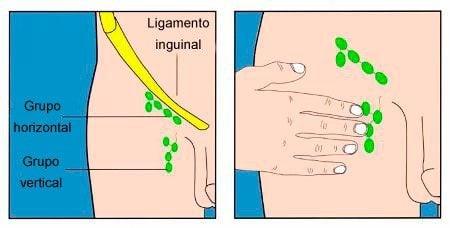 Ganglios linfáticos de la ingle