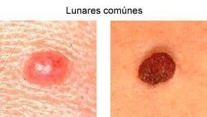 Lunares de piel comúnes