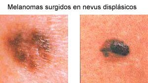 Melanoma en nevus displásicos