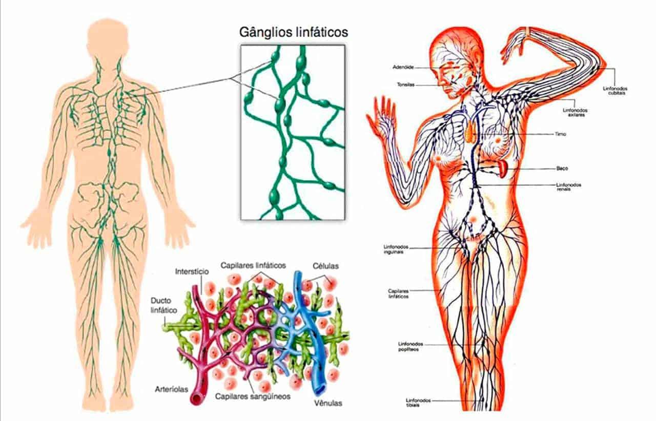 Qué causa la inflamación de los ganglios linfáticos? – Curiosoando