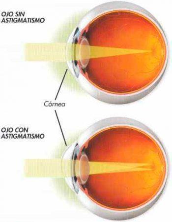 Ojo normal y con astigmatismo
