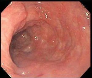 Endoscopia: colitis microscópica