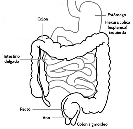 Flexura esplénica o cólica izquierda
