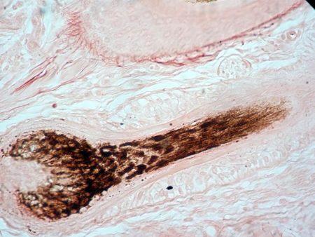 Micrografía de un folículo piloso