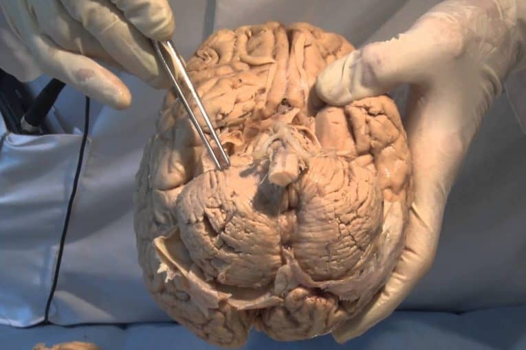 Cerebro disecado