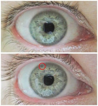 Cicatriz por iridotomía