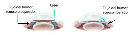 Iridotomía láser periférica