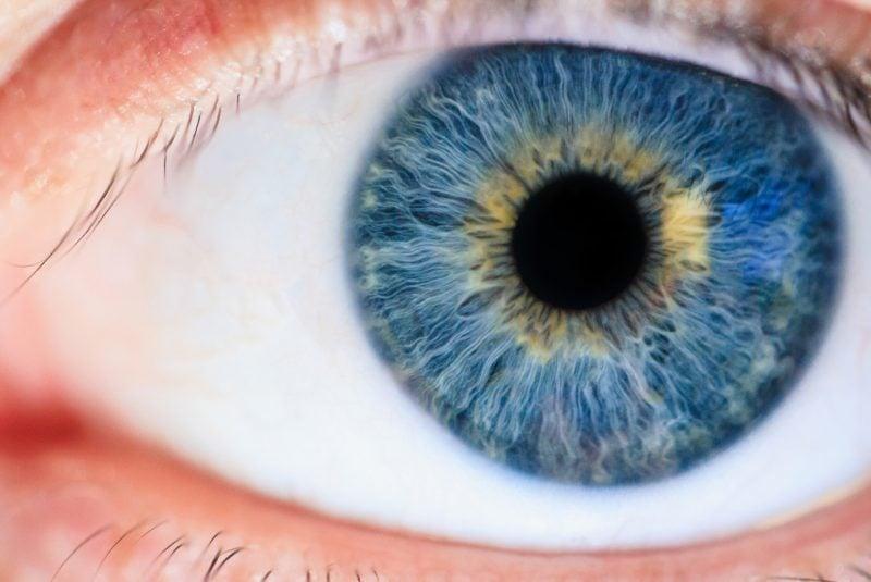 La iridotomía se hace en el iris