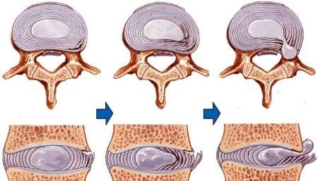 hernia discal