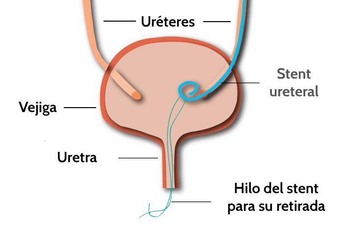 Stent ureteral - esquema