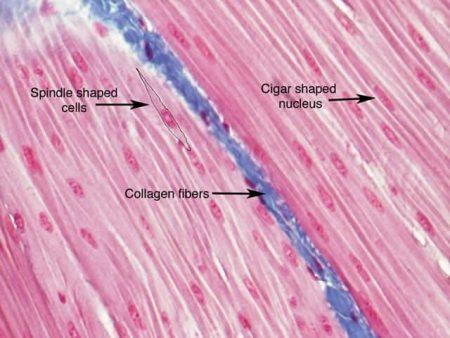 Fibra de colágeno al microscopio (corte histológico)