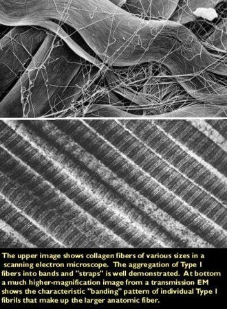 Fibras de colágeno tipo I EM