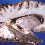 Disección lateral de un cerebro humano