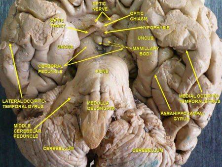 Vista inferior del cerebro humano. Disección profunda.