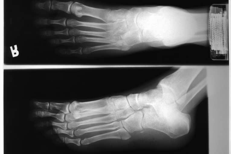 Radiografía de Rayos X del pie