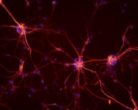 Neuronas espinales de ratón