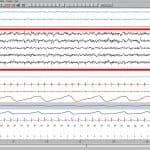 EEG Sueño fase 1