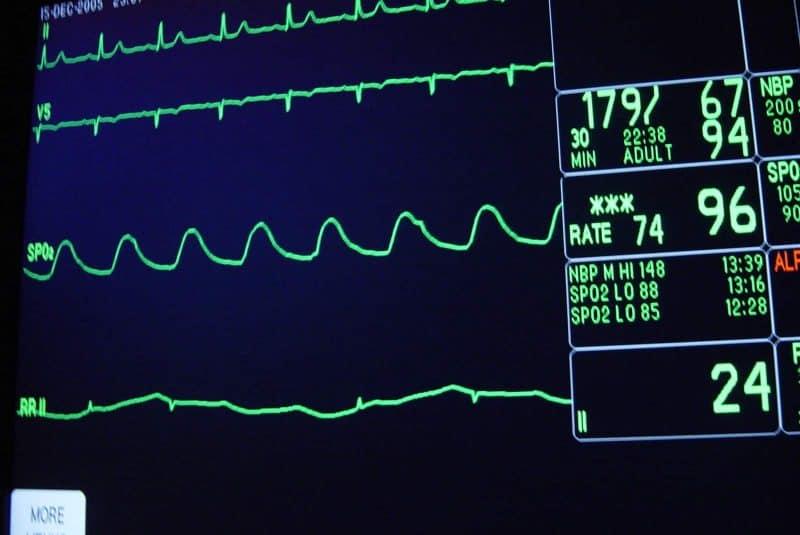 Monitorización cardíaca