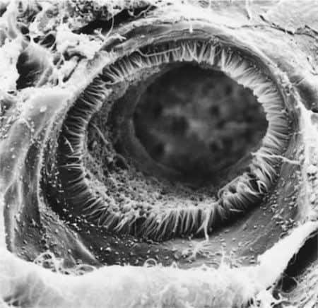 túbulo conterneado proximal (MEB)
