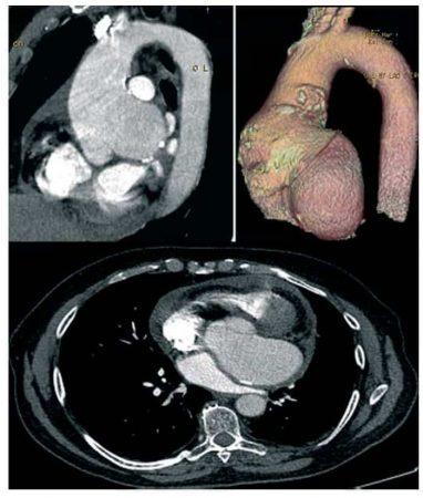 Angiografía de un aneurisma de la raíz aórtica