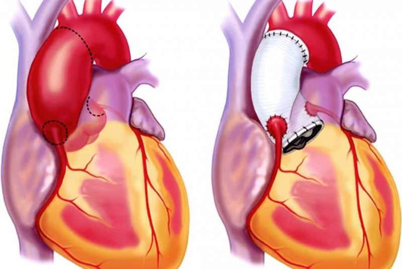 Prótesis sustitutiva en la raíz aórtica y aorta ascendente
