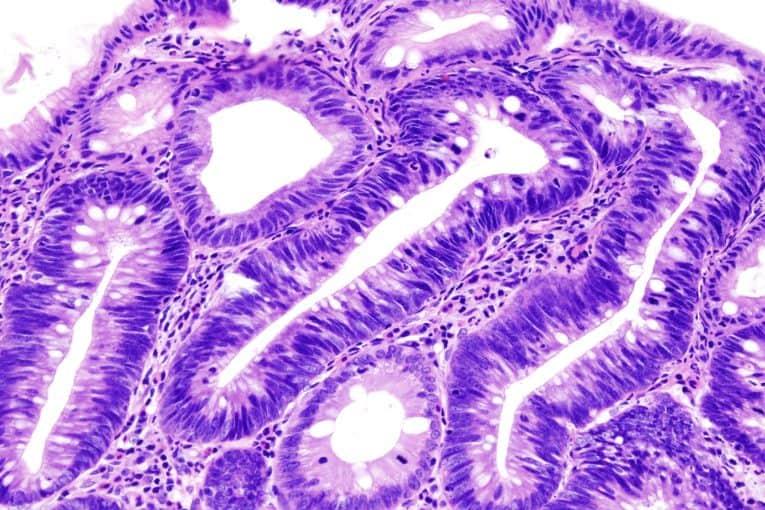 Corte histológico de un adenoma de colon