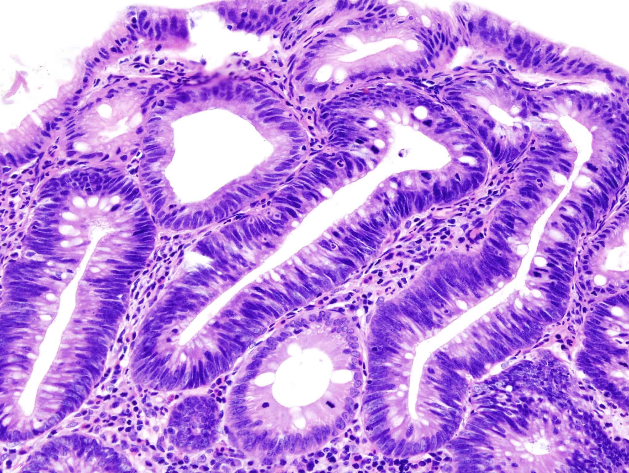 ¿Qué significa la próstata con síntomas de adenoma?