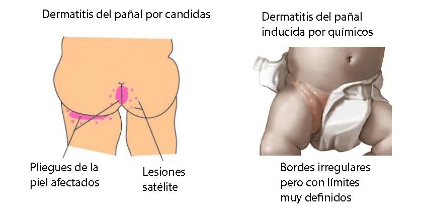 Dermatitis del pañal por candidas y por químicos