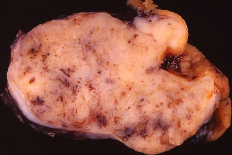 Tumor estromal gastrointestinal