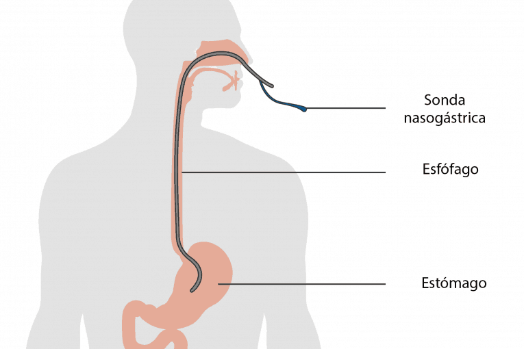 Diagrama de una sonda nasogástrica