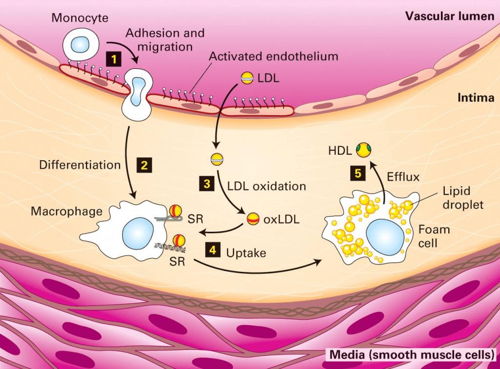 Acción colesterol LDL oxidado