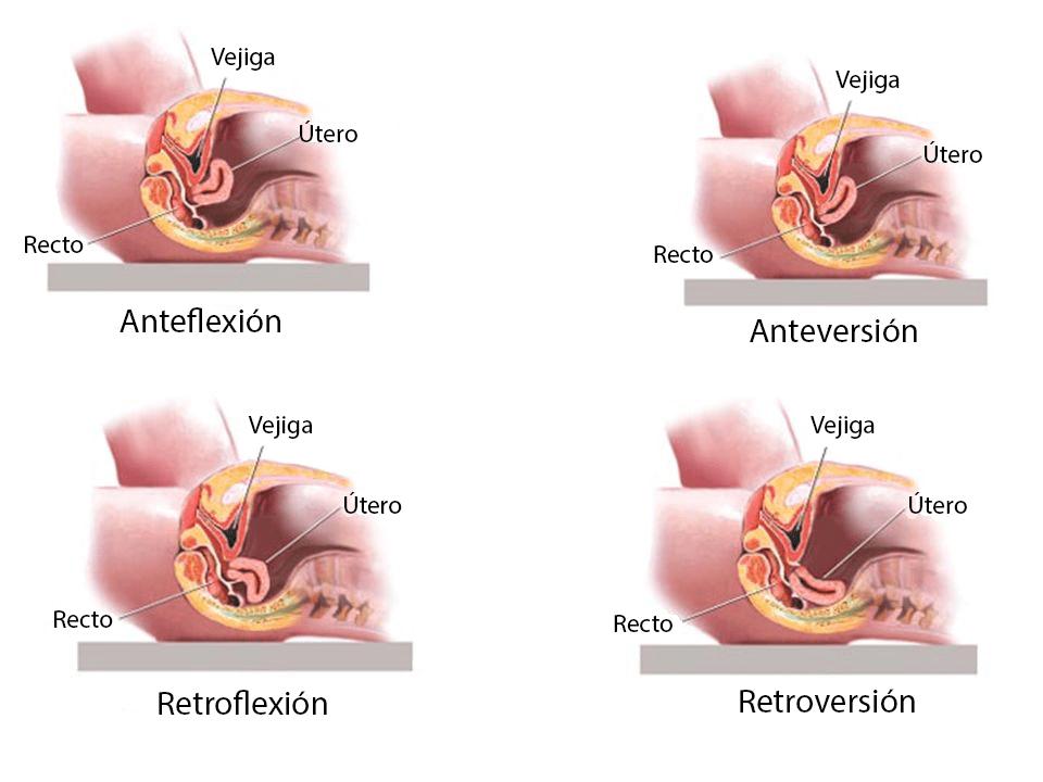Posiciones anormales del útero