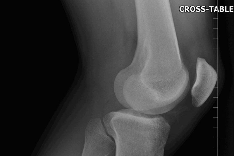 Radiografía de una rodilla