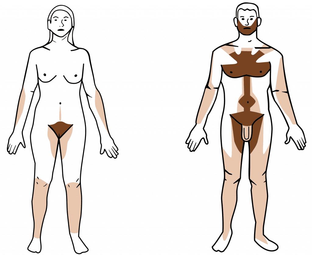 Distribución del vello androgénico