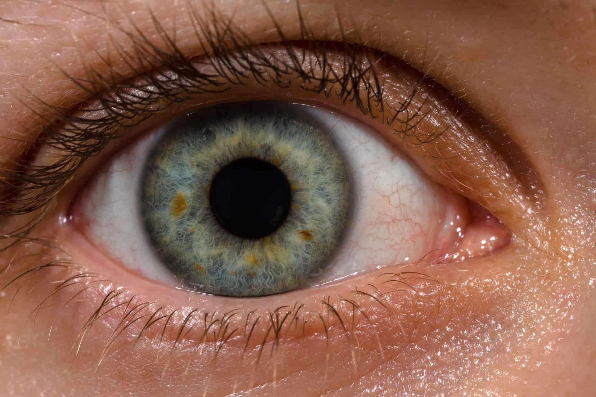 porque tengo un punto negro en el ojo