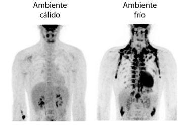 Estimulación de la grasa marrón en ambientes fríos