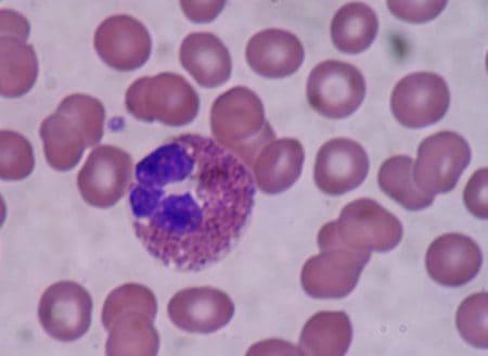 Eosinófilo al microscopio óptico