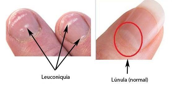Lúnula y leuconiquia
