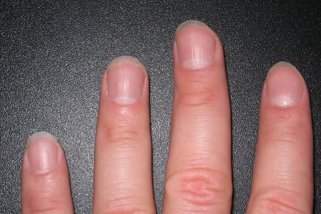 Lúnulas en las uñas