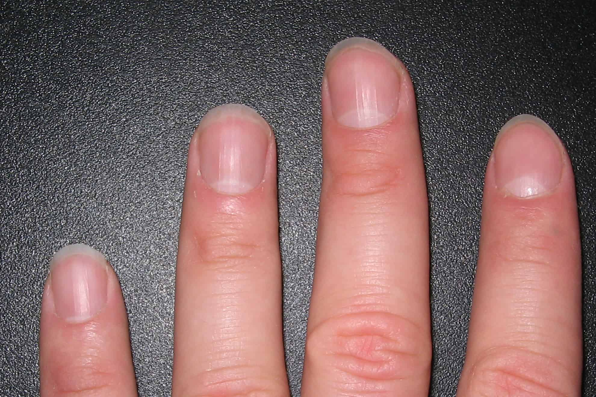 Qué son las lúnulas de las uñas? – Curiosoando