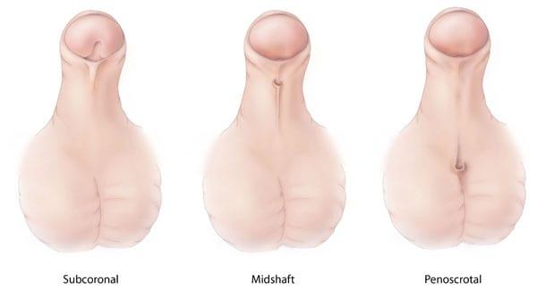 Tipos de hipospadias