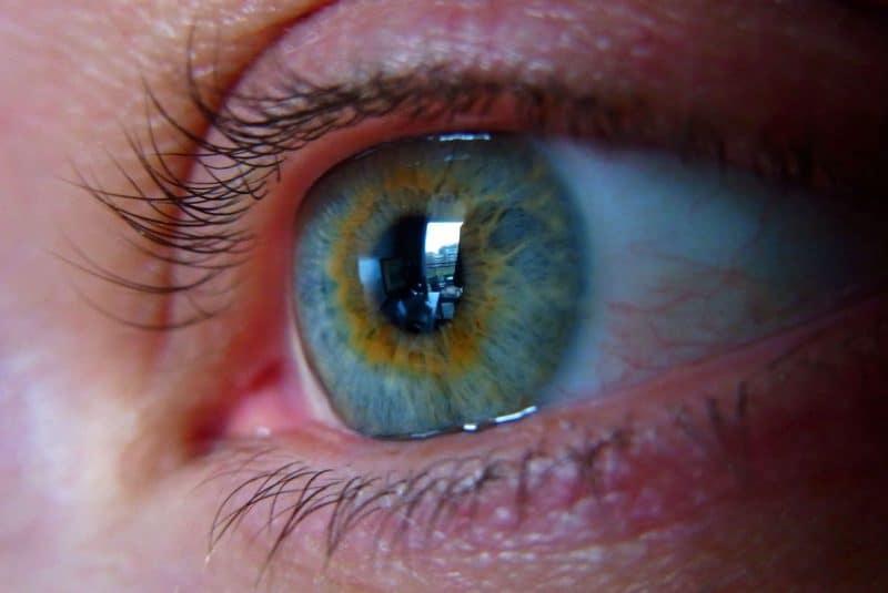 Ojo y carúncula lagrimal