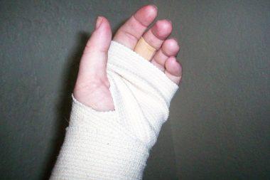 Mano y brazo vendado