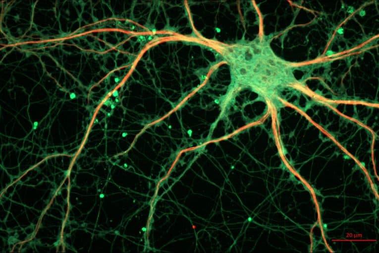 Neurona cultivada de rata