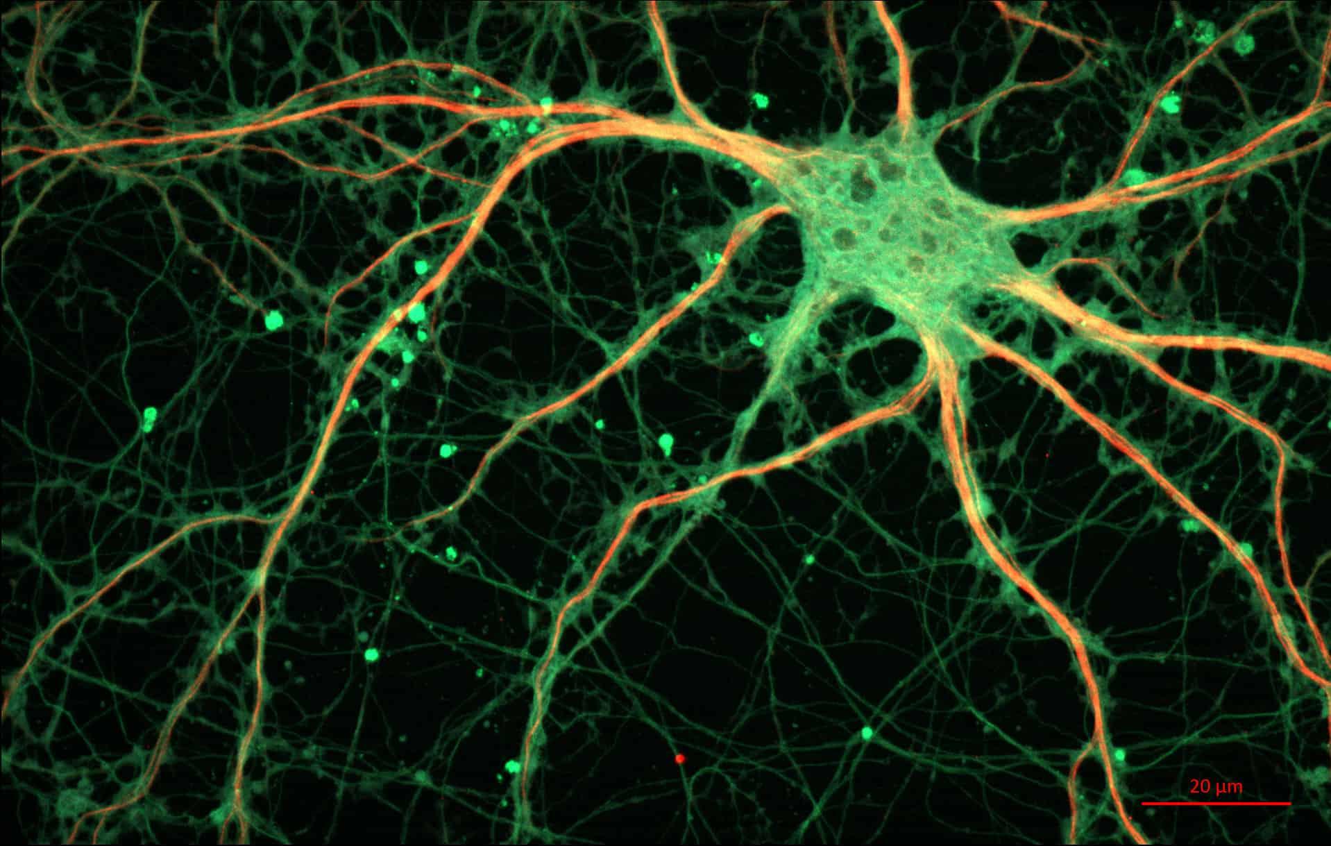 Qué es la sinapsis eléctrica? – Curiosoando
