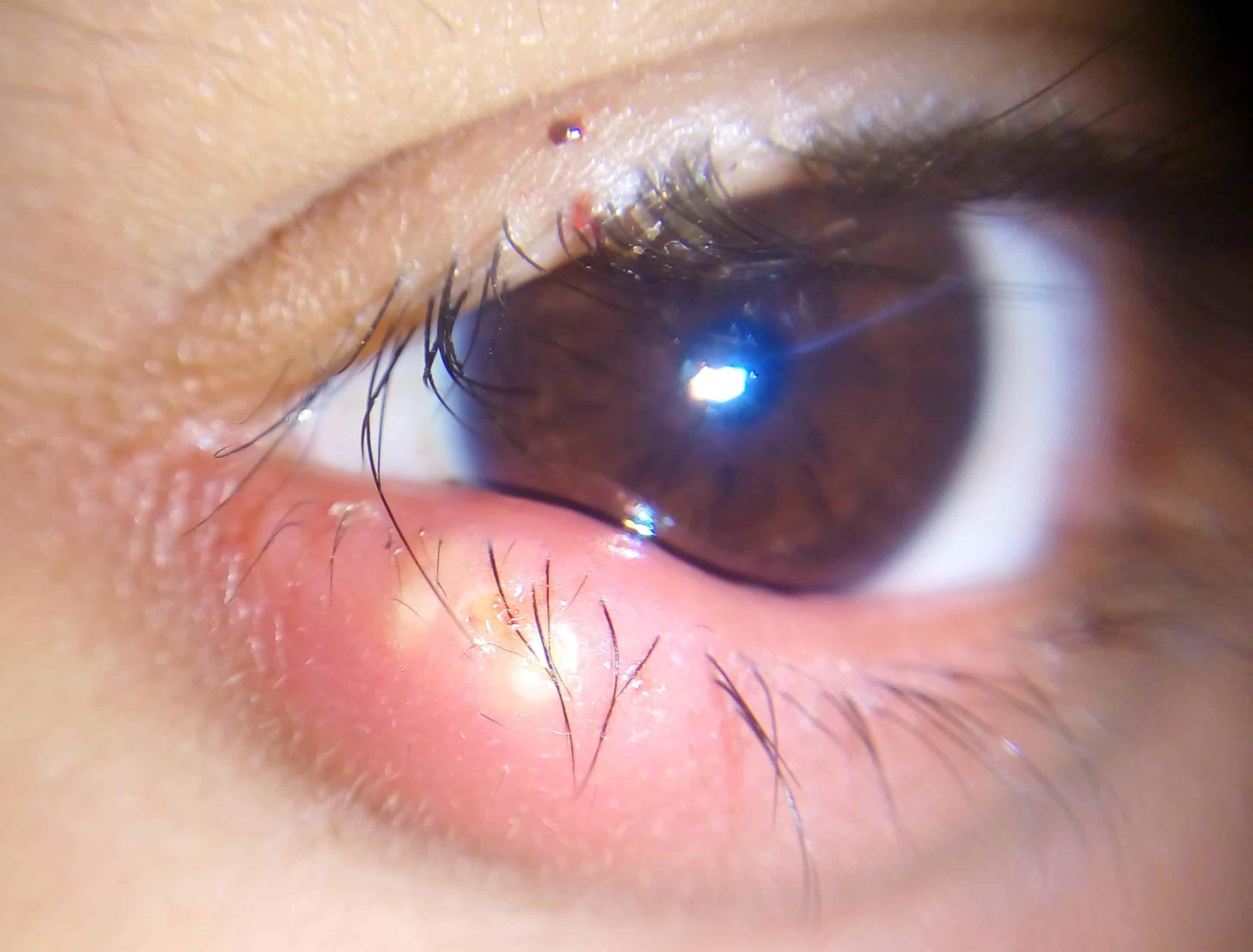 A que se debe el orzuelo en el ojo