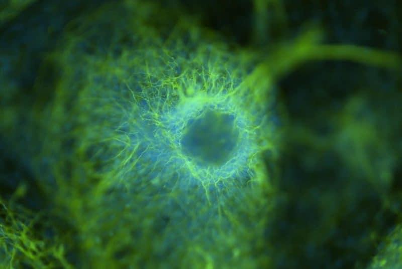 Cluster neuronal