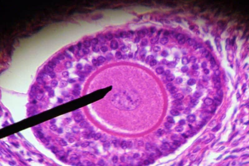 Folículo ovárico humano